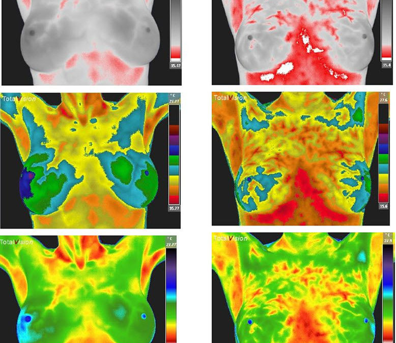 Breast Thermography & Hormones