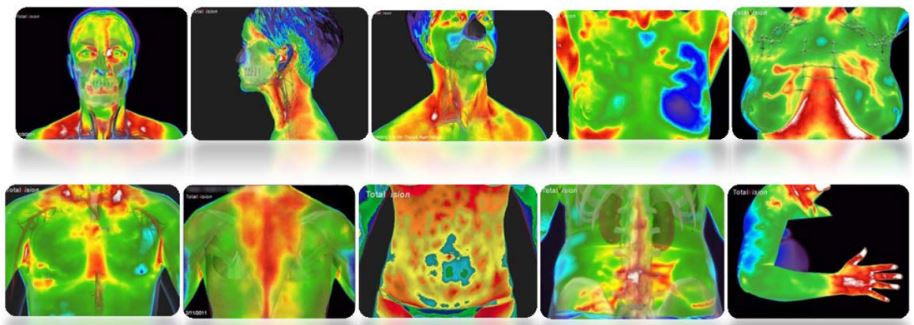Thermography & Inflammation